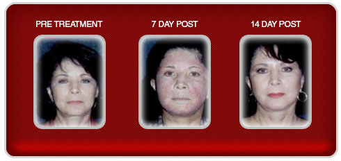 laser-resurfacing-trial